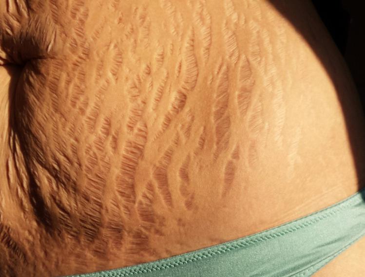 Điều trị rạn da sau khi sinh con