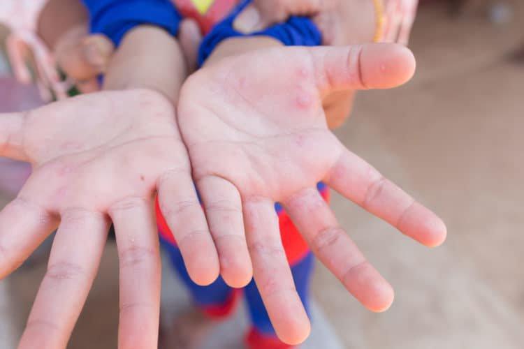 Hướng dẫn phòng & chăm sóc trẻ bị bệnh tay chân miệng