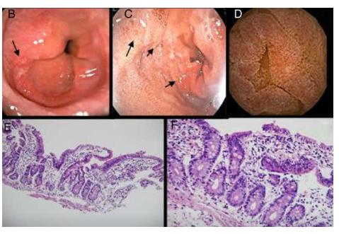 Hình ảnh nội soi và mô bệnh học của viêm dạ dày ruột do bạch cầu ái toan gây ảnh hưởng đến vận động dạ dày ruột