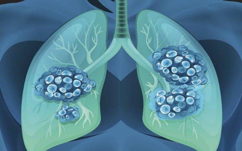 hội chứng suy hô hấp cấp - ARDS