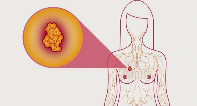 tổng quan ung thư vú
