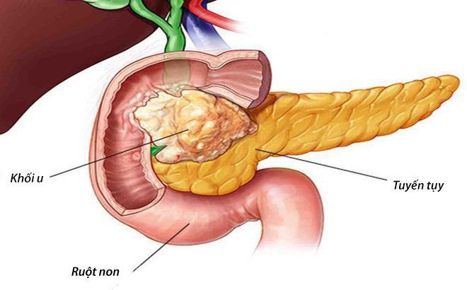 ung thư tuỵ