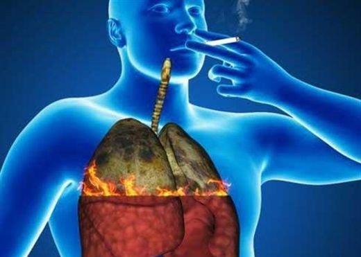 ung thư phổi nguyên phát