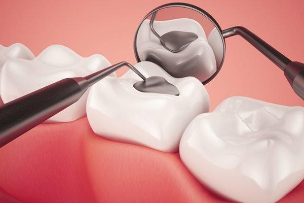 hàn răng