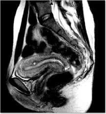 Chụp cộng hưởng từ (MRI) khung chậu