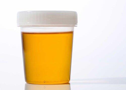 Nước tiểu màu vàng đậm là dấu hiệu trẻ mất nước mức độ nhẹ