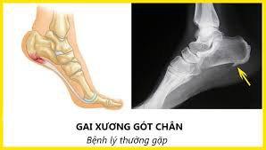 gai xương gót chân