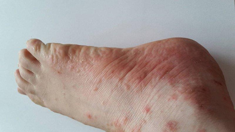 Bệnh tổ đỉa ở ngón chân