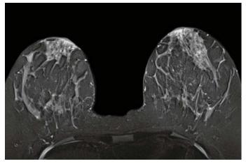 Hình ảnh thu được khi chụp MRI vú