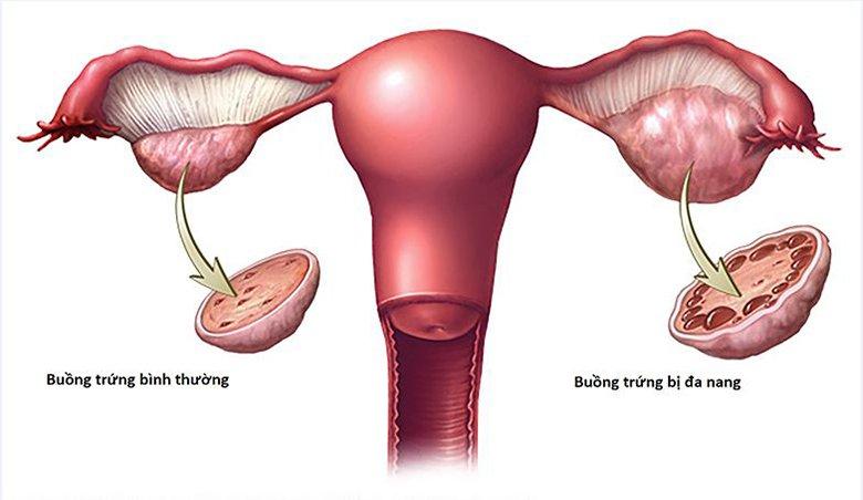 Hội chứng buồng trứng đa nang: Nguyên nhân, chẩn đoán, điều trị