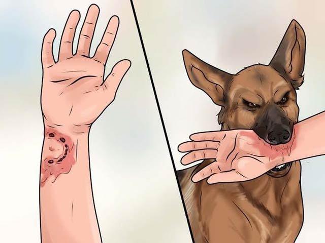 Sơ cứu vết thương do động vật cắn