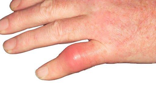 Ngón tay sưng đỏ sau bó bột