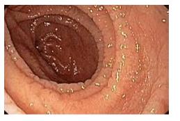 Hình ảnh nội soi bệnh nhân được chẩn đoán bệnh Celiac