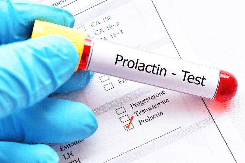 Xét nghiệm Prolactin