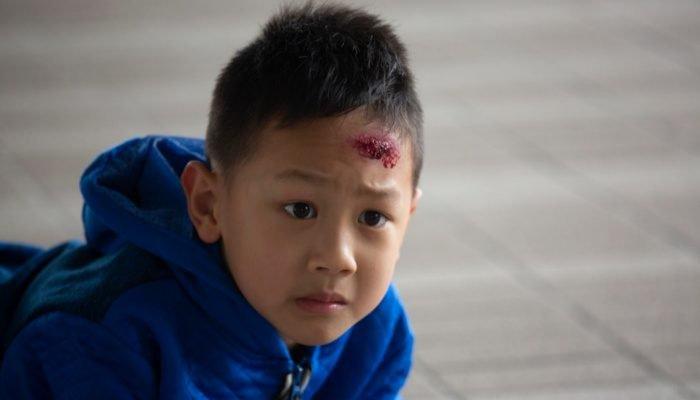 trẻ em ngã đập đầu