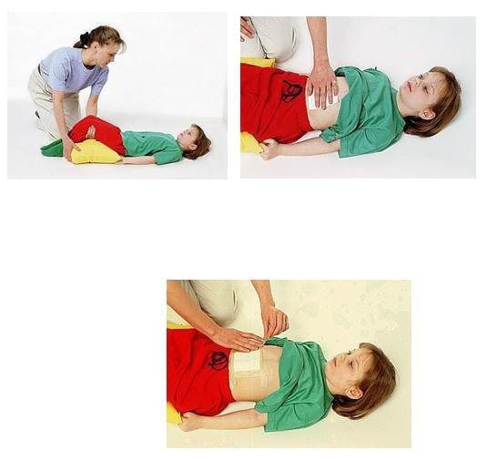 sơ cứu cho người chấn thương vùng bụng