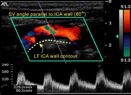 siêu âm Doppler màu động mạch cảnh