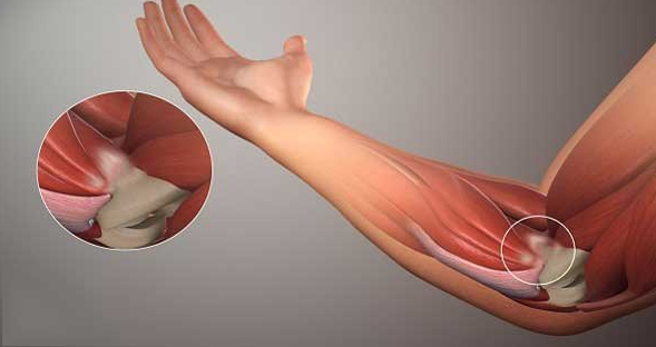 Viêm gân do hội chứng tennis elbow