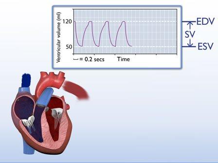 Siêu âm tim giúp bác sĩ đánh giá EDV và ESV