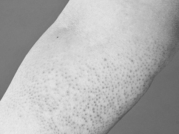Bệnh thoái hóa tinh bột (hay bệnh amyloidosis)