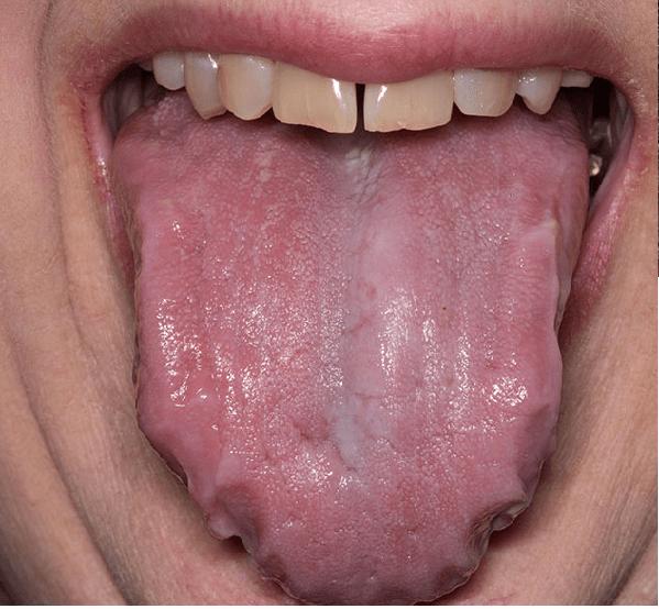Lưỡi phì đại có thể là một dấu hiệu của bệnh amyloidosis