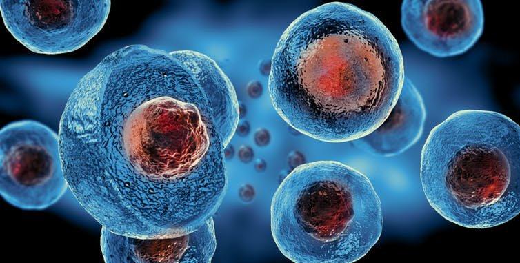 Ghép tế bào gốc điều trị bệnh phổi tắc nghẽn mạn tính