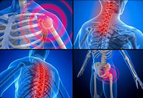 Bệnh đau cơ xơ hóa
