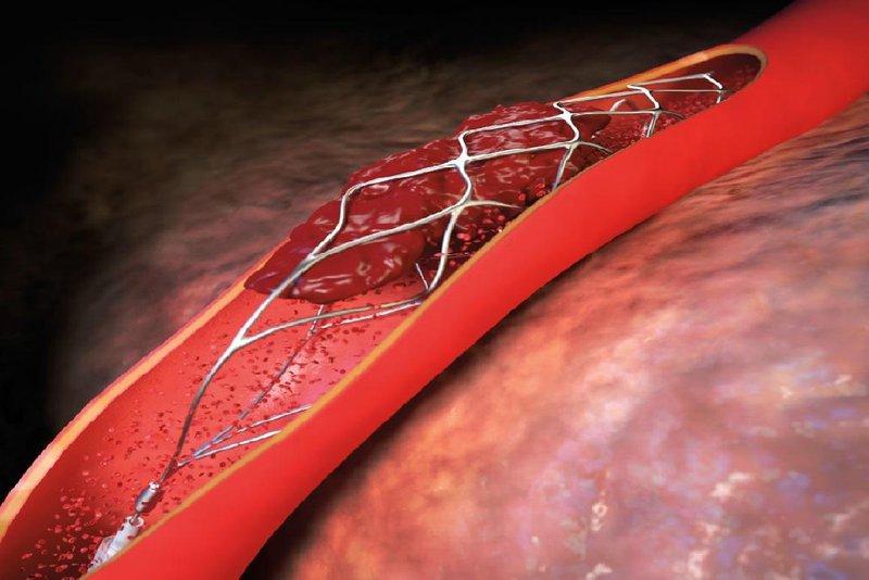 huyết khối trong lòng stent