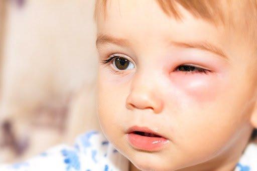 Viêm mô tế bào quanh hốc mắt ở trẻ