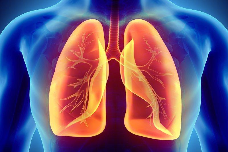 Tràn dịch màng phổi có nguy cơ bị ung thư