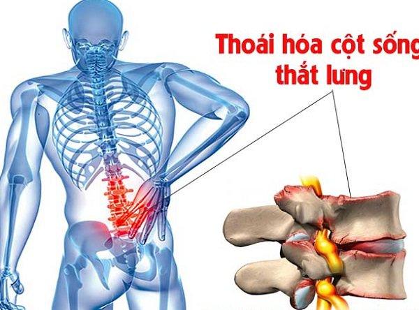 Thoái hoá cột sống thắt lưng phải phẫu thuật, hướng điều trị thế nào?