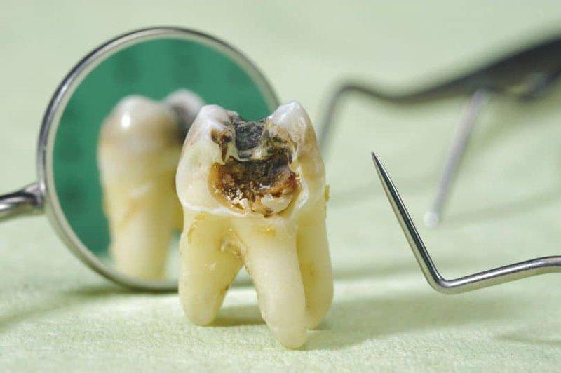 Bị sâu răng số 8 uống iba-mentin 62,5mg và chymotrypsin có ảnh hưởng tới em bé không?