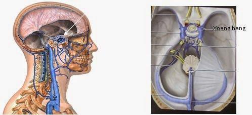 Phương pháp điều trị rò động mạch cảnh xoang hang