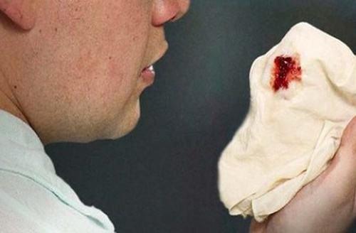 Người cao tuổi bị ho lâu ngày, ra máu không có đờm có làm sao không?