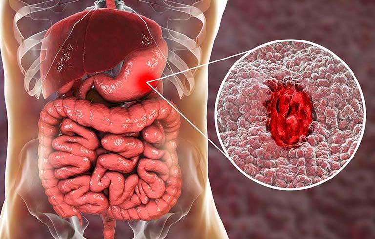 Bị xuất huyết dạ dày có được hoạt động mạnh không?