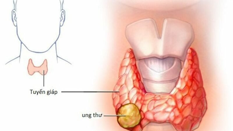 Cách chữa trị u tuyến giáp kích thước 1mm hai bên?