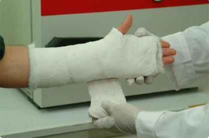 Tác dụng của nẹp bột trong phẫu thuật kết hợp xương và bao lâu có thể tháo bột?