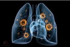 Sốt li bì không rõ nguyên nhân khi điều trị lao phổi có sao không?