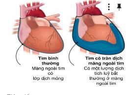 Tim bị tràn dịch màng tim khoảng 16mm có sao không ạ?