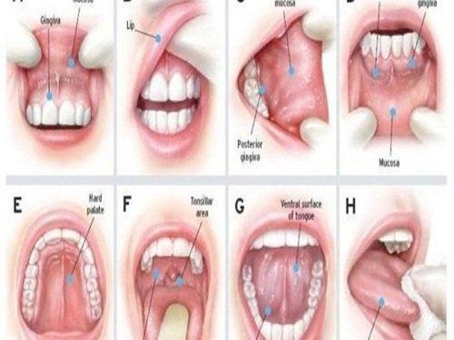 Bé 2 tuổi bị sưng lợi viêm loét khoang miệng và có mùi hôi là dấu hiệu bệnh gì và điều trị thế nào?