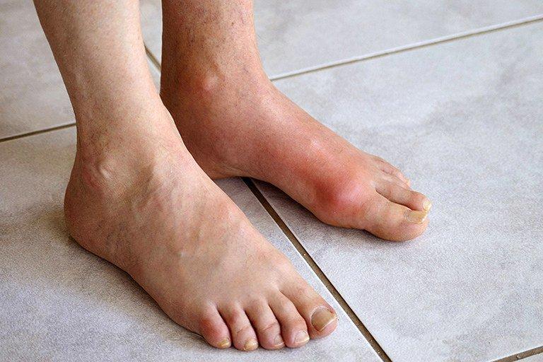 Gout mạn tính