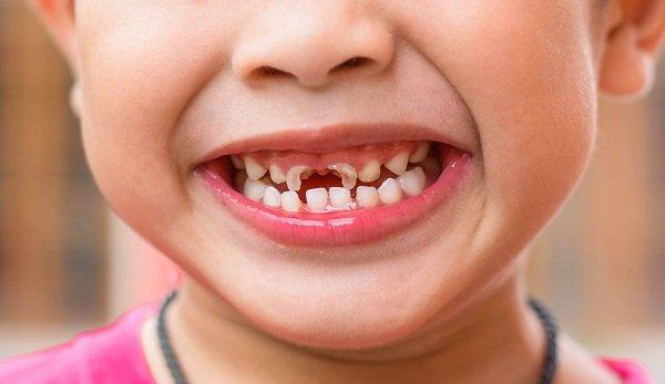 Bé 3 tuổi bị mòn men răng gây sún có cách nào khắc phục được không?