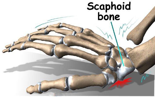 Gãy xương thuyền cổ tay 8 năm có chữa được nữa không?