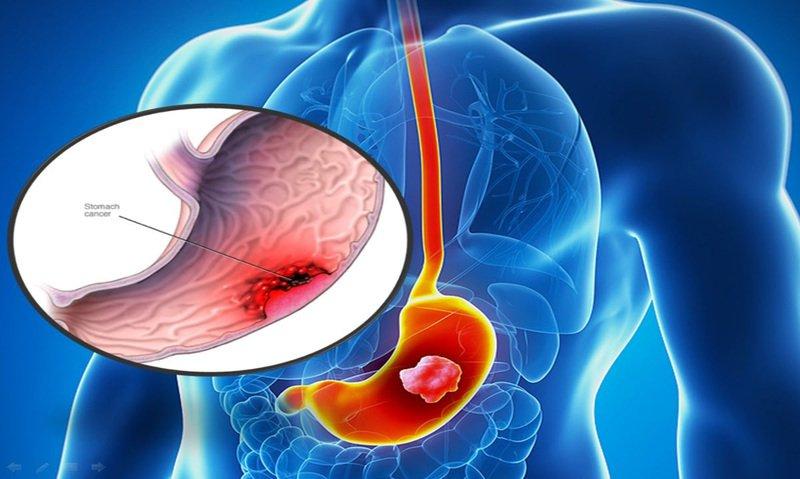 Kết quả xét nghiệm: CA 72-4: 235; Cyfra: 3,3 có phải biểu hiện ung thư hệ tiêu hóa và phổi không?