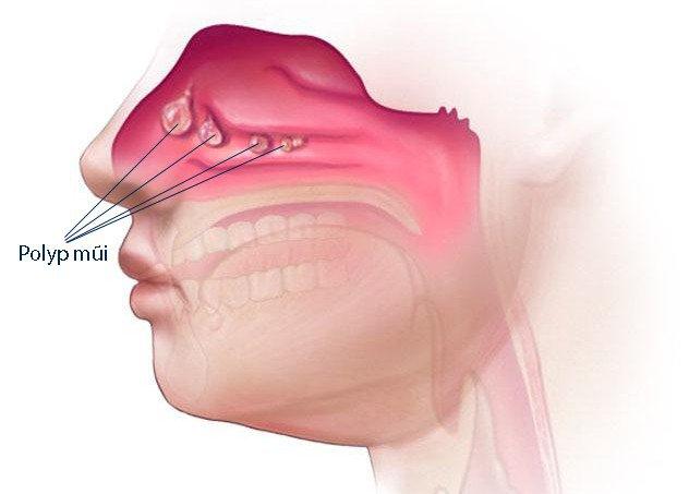 Có thuốc điều trị cho polyp mũi nhỏ lại không?