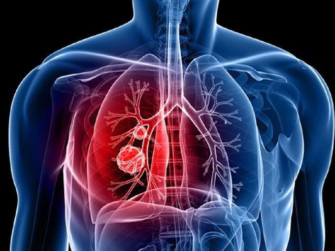 Hạch ở gần xương quai xanh to và đau do ung thư phổi giai đoạn 3B có thể mổ được không?