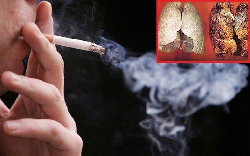 ung thư phổi do hút thuốc lá