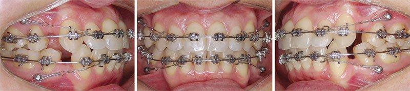 Giữa nhổ hai răng số 4 hàm dưới và mài kẽ để niềng răng phương pháp nào tốt hơn?