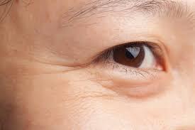 Làm thế nào để giúp vùng da dưới mắt săn chắc hơn?