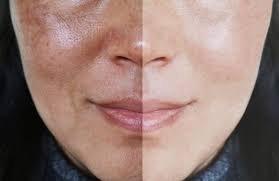 Đã sử dụng nhiều sản phẩm chăm sóc da và điều trị laser nhưng làn da không cải thiện nên làm gì?